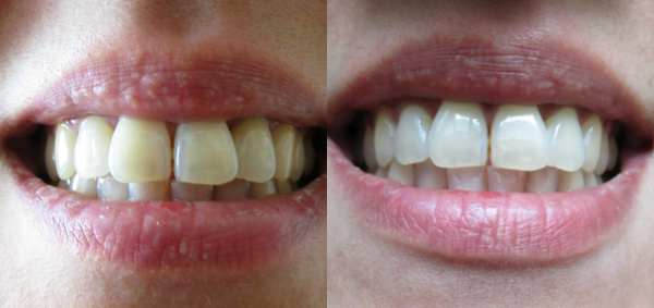 vitare tänder med gurkmeja