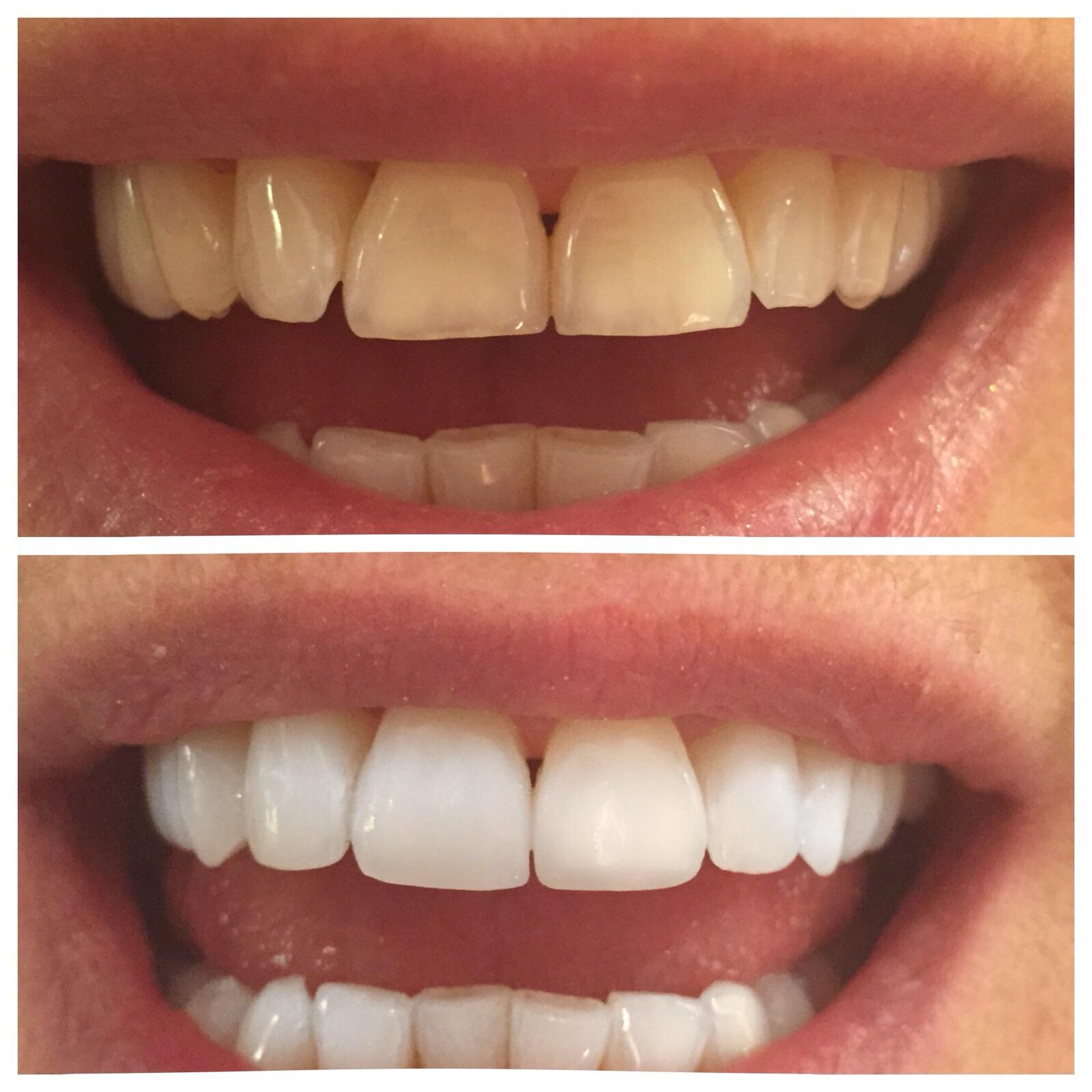 Före och efter bild när Sofia blekt tänderna med Dentaworks.