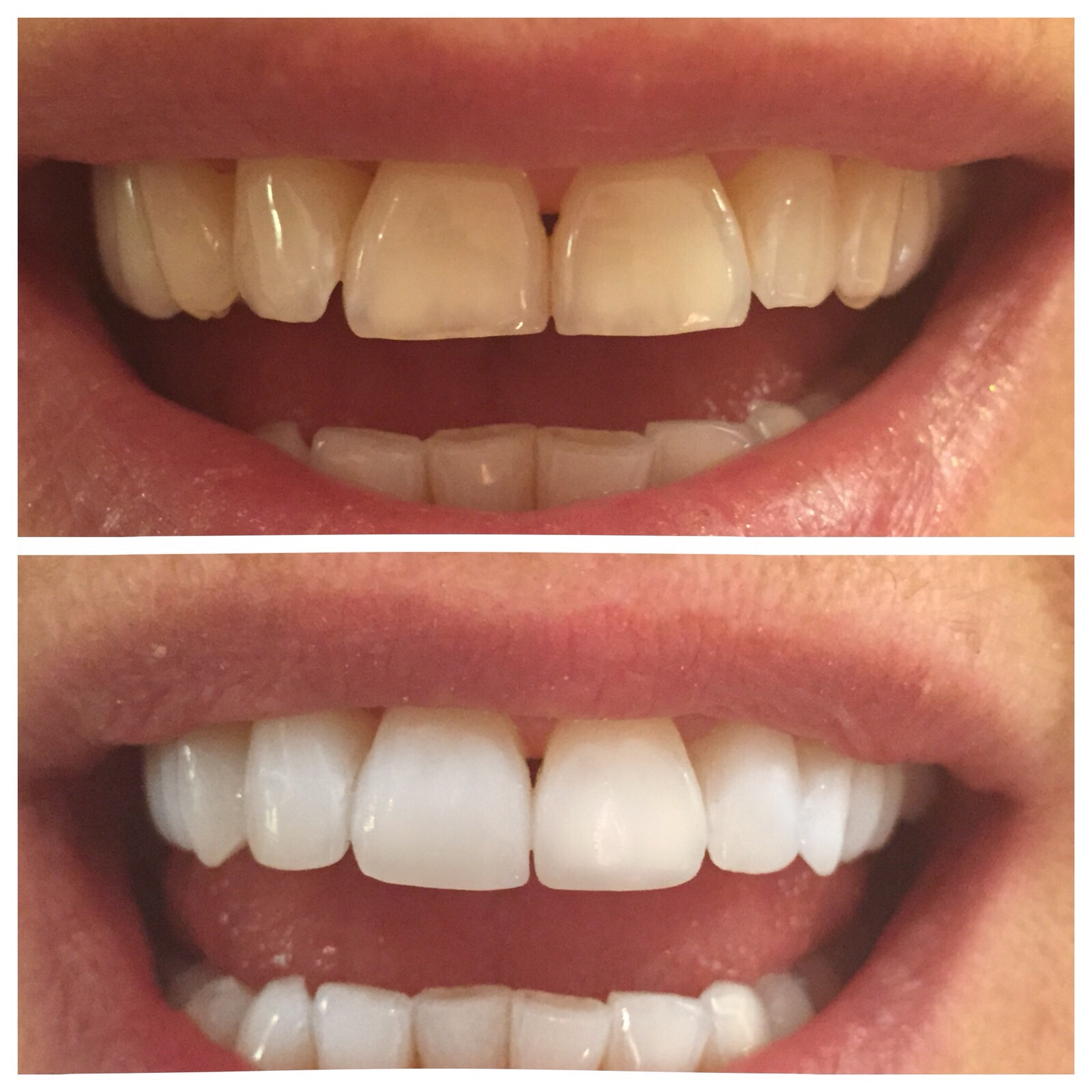 Beconfident tandblekning recension