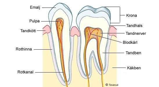 sprängskiss av en tand