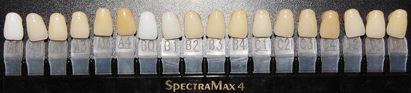 vita skala missfärgning tänder