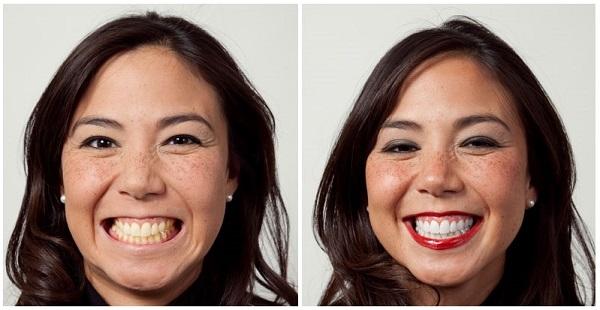 shinewhite tandblekning före och efter