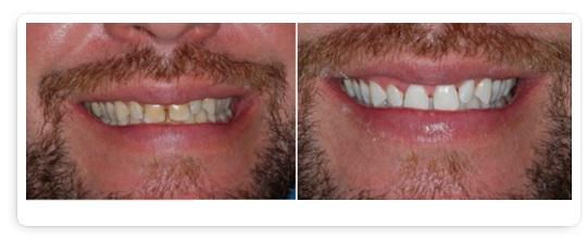 beconfident tandblekning resultat