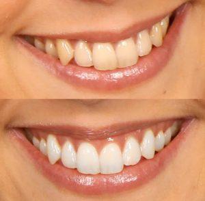 FÖre och efter bild efter en av Dentways kunder blekt tänderna med deras White Strips