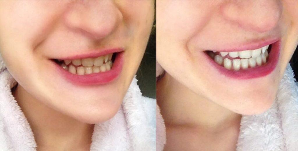 Före och efter bilder efter att Rebecka har recenserat Dentway Whitening Strips
