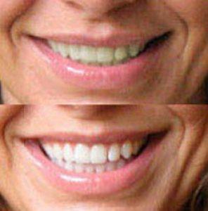 Resultatet av tandblekning med Dentway White Strips