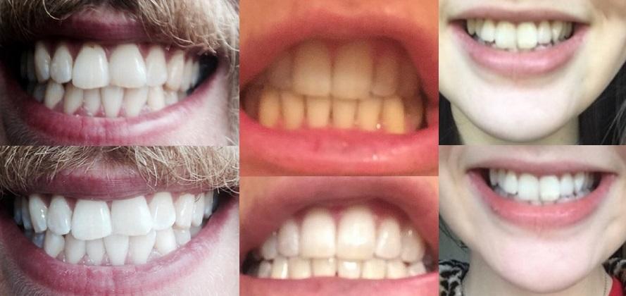 resultat efter att ha blekt tänderna med tandblekning och skena