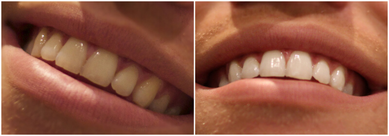 resultat av dentway tandblekning