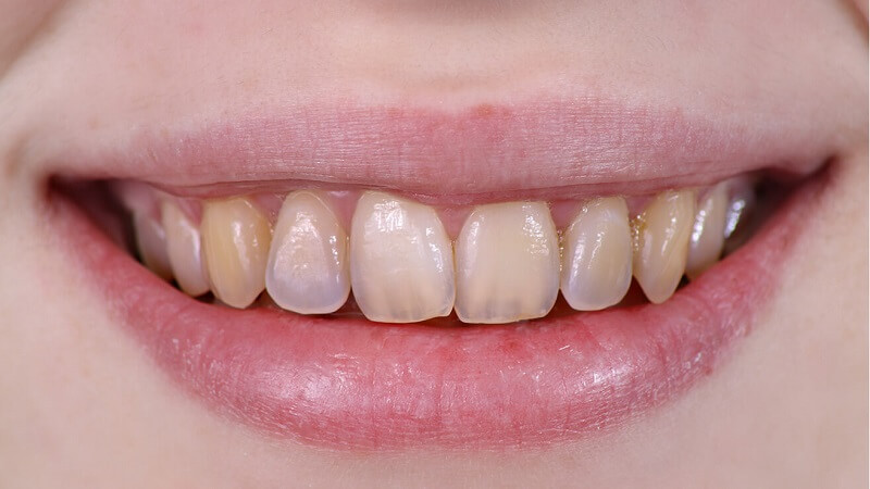 vita tänder hemmakur