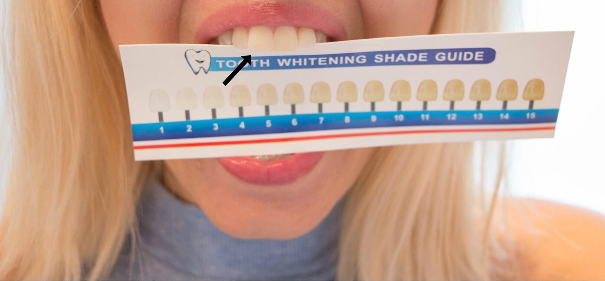 Test och omdömen av Confidentsmiles tandblekning - ger ett vitt resultat efter sju dagar!