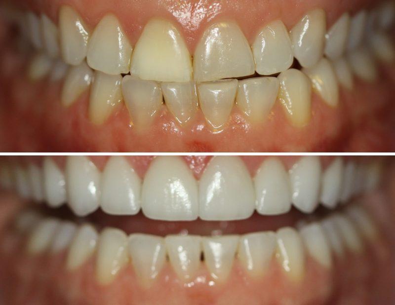 bikarbonat vita tänder