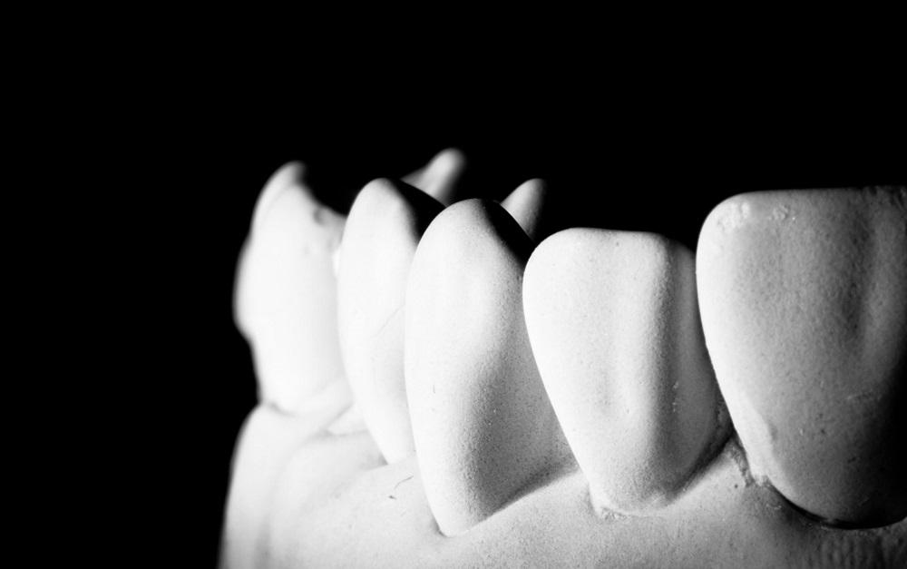 Har du fått ont i tänderna efter en tandblekning? Lugn vi har svaren.