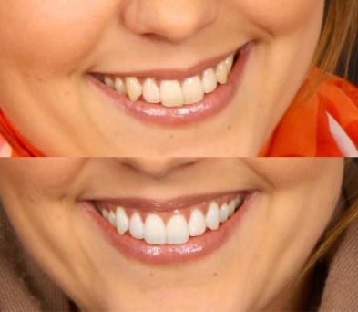 Vinnare av Vita Tandens jämförelse av tandblekning