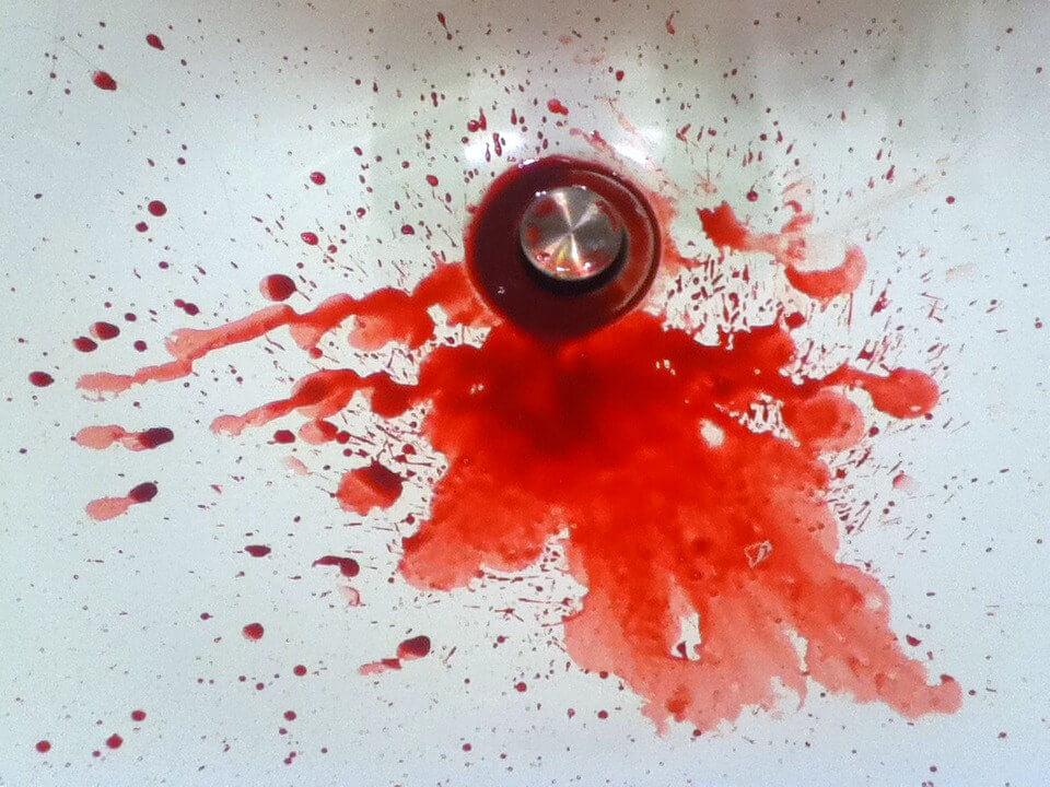 Spottar du blod efter ha borstat tänderna? Här är 9 anledningar varför