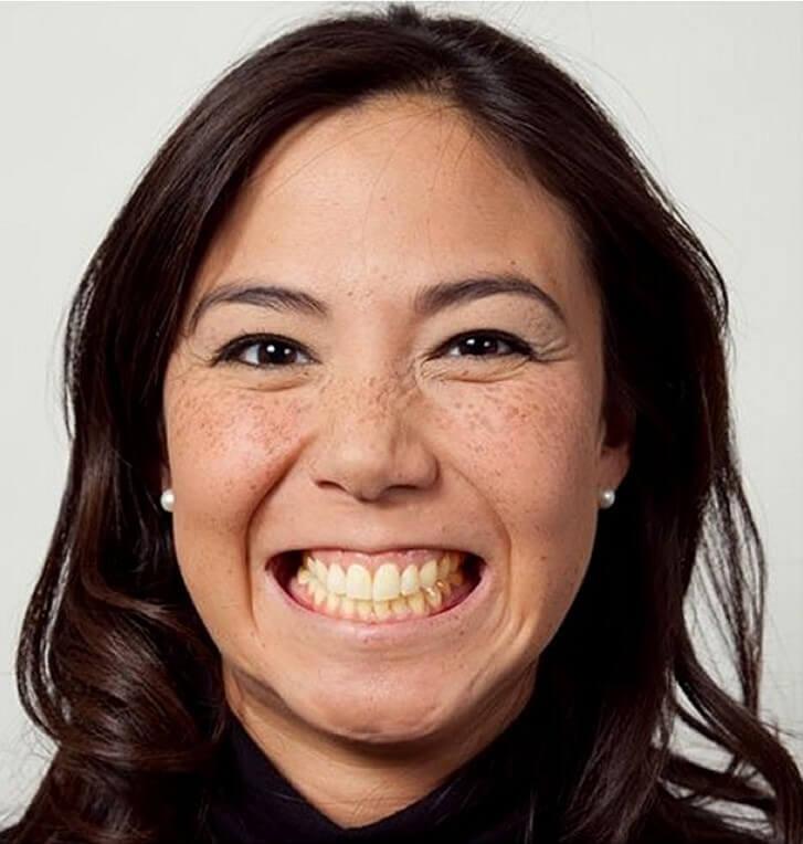 Guadelope har testat Swiss Clincis populäraste tandblekning Whitening System - se före och efter bilder.