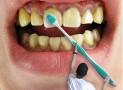 Farlig tandblekning säljs i Sverige
